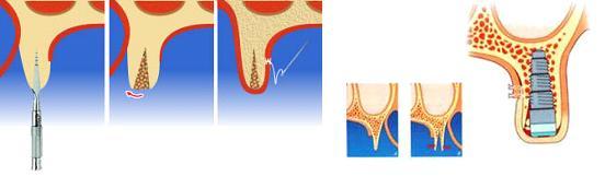 Расщепление гребня альвеолярного отростка