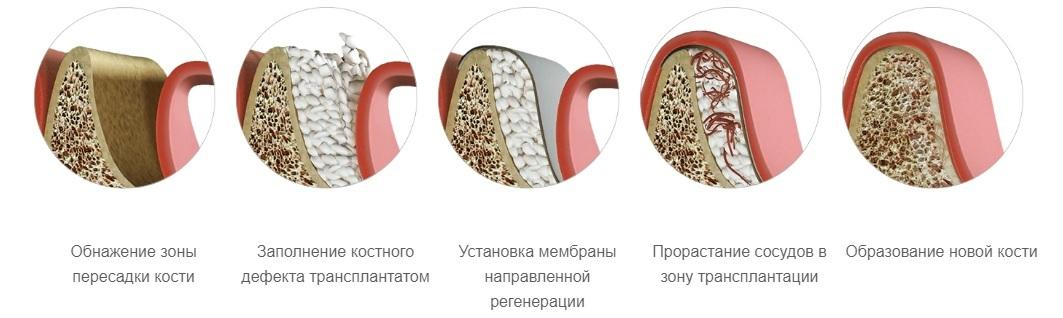 Направление костной регенерации