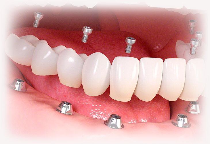 Условно-съёмное протезирование зубов