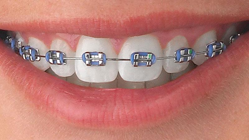 Лечение на брекет-системе American Orthodontics (Металл)