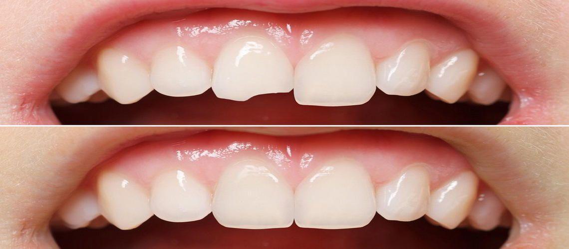 Эстетическая реставрация зубов