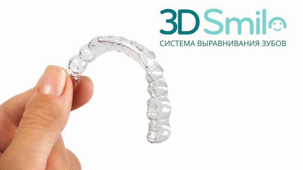 лечение каппами «3D Smile»
